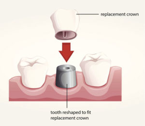 Diagram of a dental crown being placed on a dental implant used by Tulsa dentist.