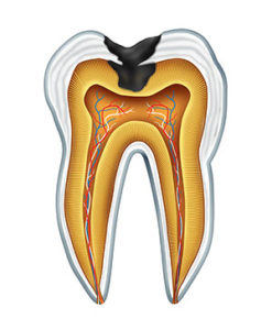 Illustration of a tooth with decay from a cavity used by Tulsa dentist at T-Town Smiles.