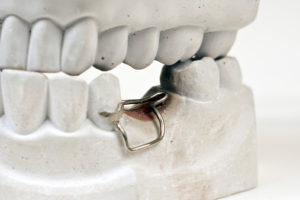 Orthodontic Space Maintainer in a fake jaw used by Tulsa dentist at T-Town Smiles.